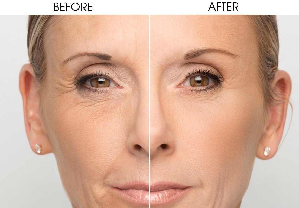 Facial Remodeling 4D and 6D with Fotona Laser - Centro Médico Estético Dr  Cárdenas