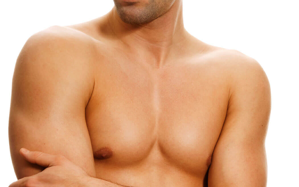 Treatment for gynecomastia in Costa Rica