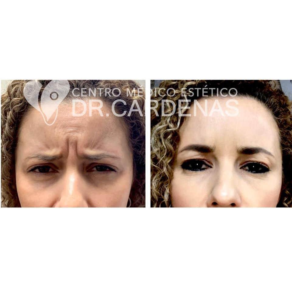 Corrección de líneas expresión + Corrección de Entrecejo + Rejuvenecimiento Facial