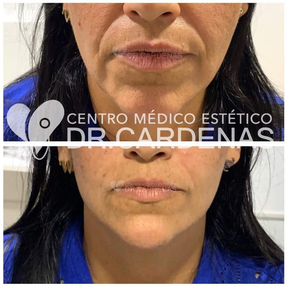 Lifting facial + perfilamiento de rostro