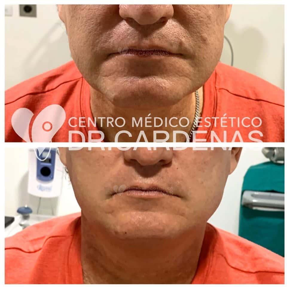 Lifting facial + perfilamiento de rostro + corrección secundaria y parcial de surco nasogeneano