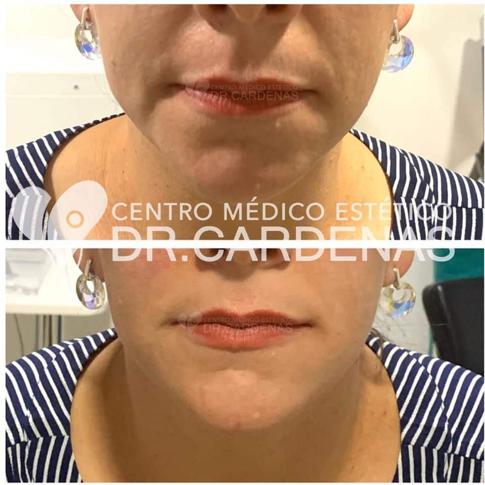 Lifting facial + perfilamiento de rostro en Costa Rica