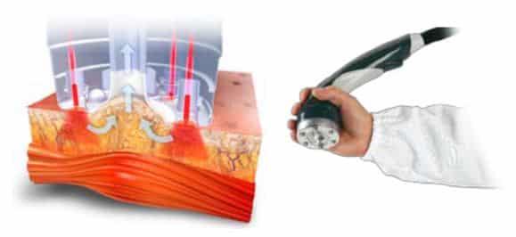 Triactive Laser Costa Rica