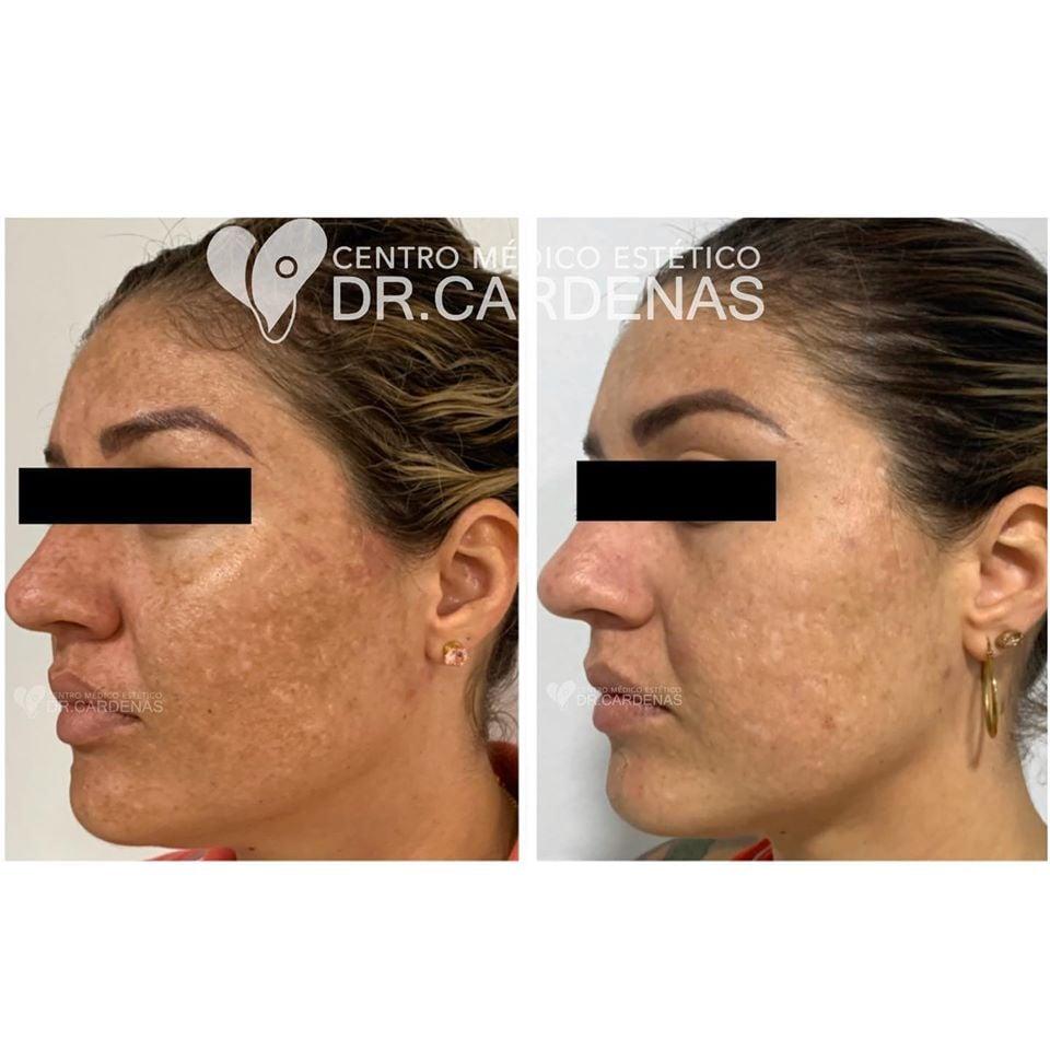 control de Melasma (Manchas Faciales)