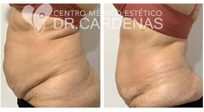 Tensado corporal costa rica - resultados reales